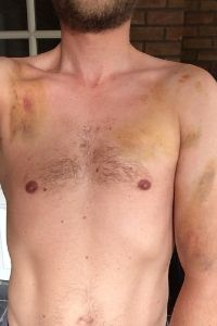 a photo of reinout without his shirt on showing many bruises